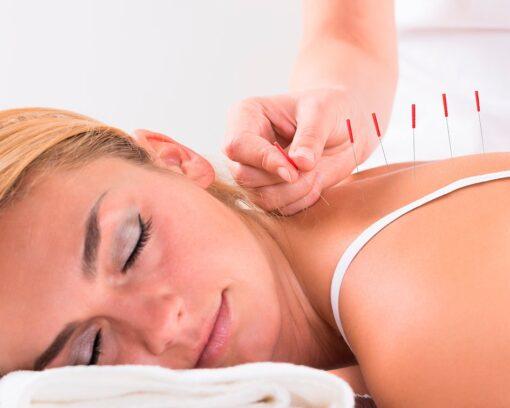 estudiar experto en acupuntura